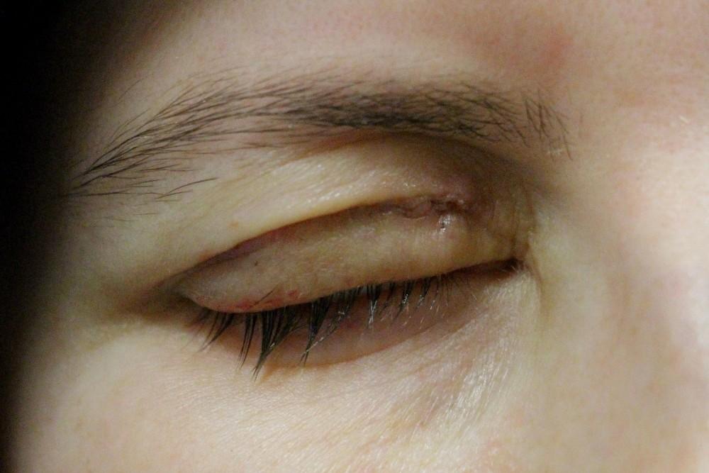 Göz kapağını kapatamayan hastalar altın implantla tedavi ediliyor