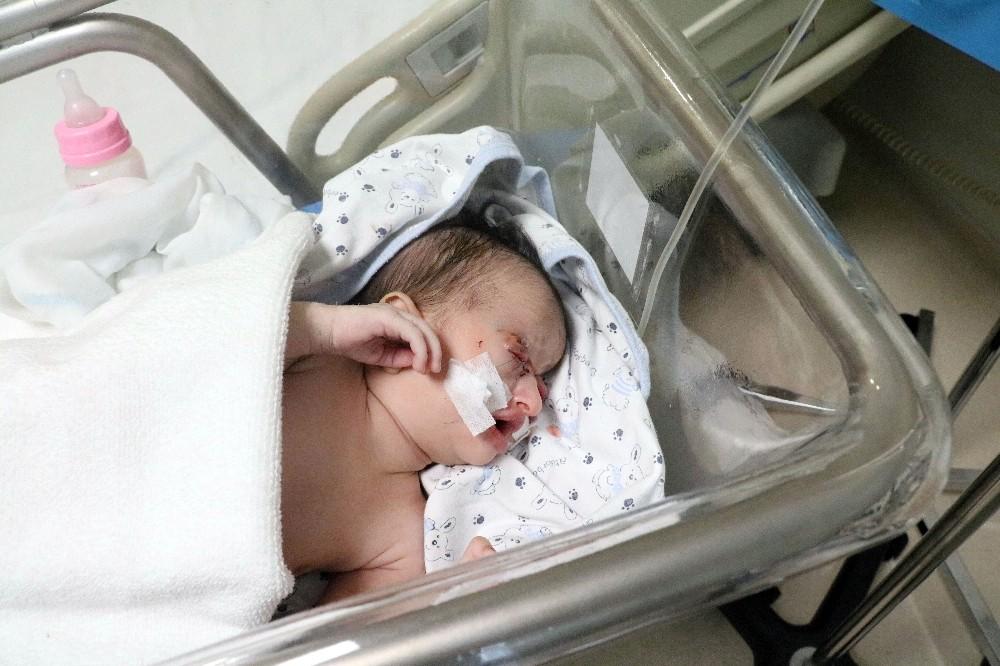 27 günlük bebeğe göz kapağı yapıldı
